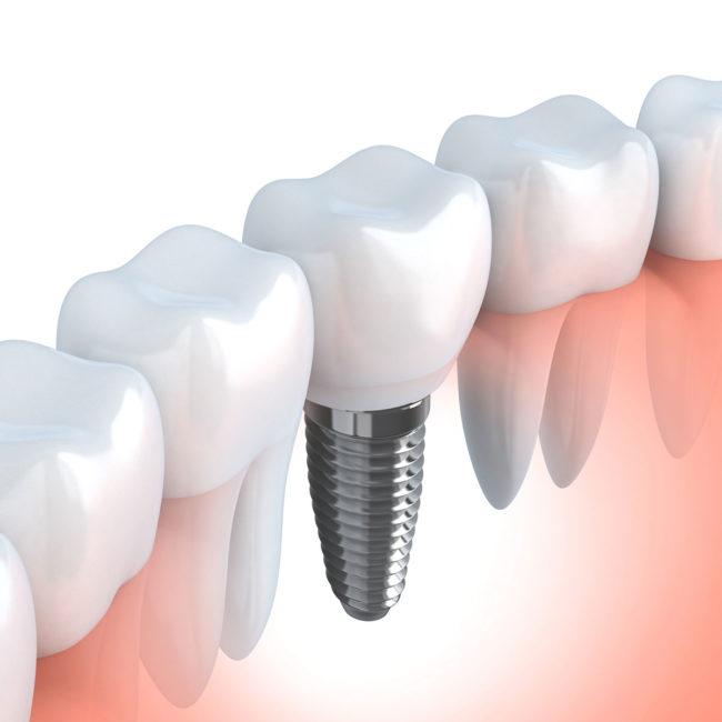 Morales Cervera tratamiento dental Palencia
