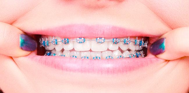 Ortodoncias fijas Morales Cervera
