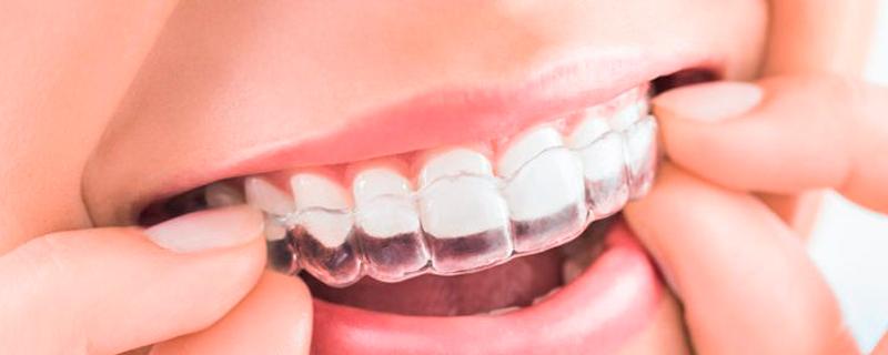 Ortodoncias de calidad Morales Cervera