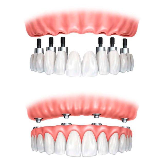 implante dental en un día Morales Cervera
