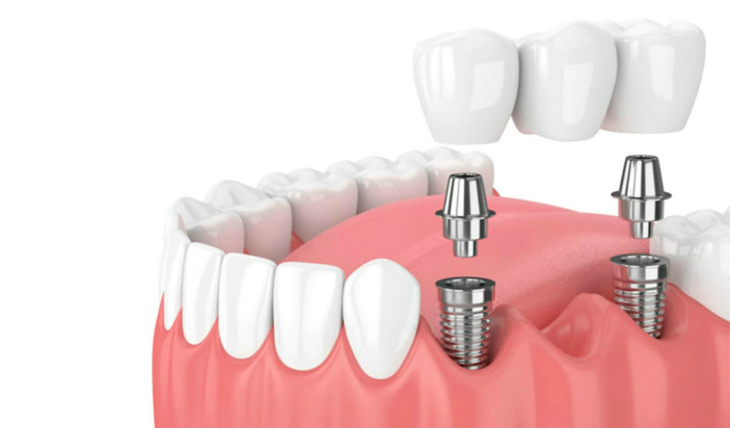implantes dentales Palencia Morales Cervera