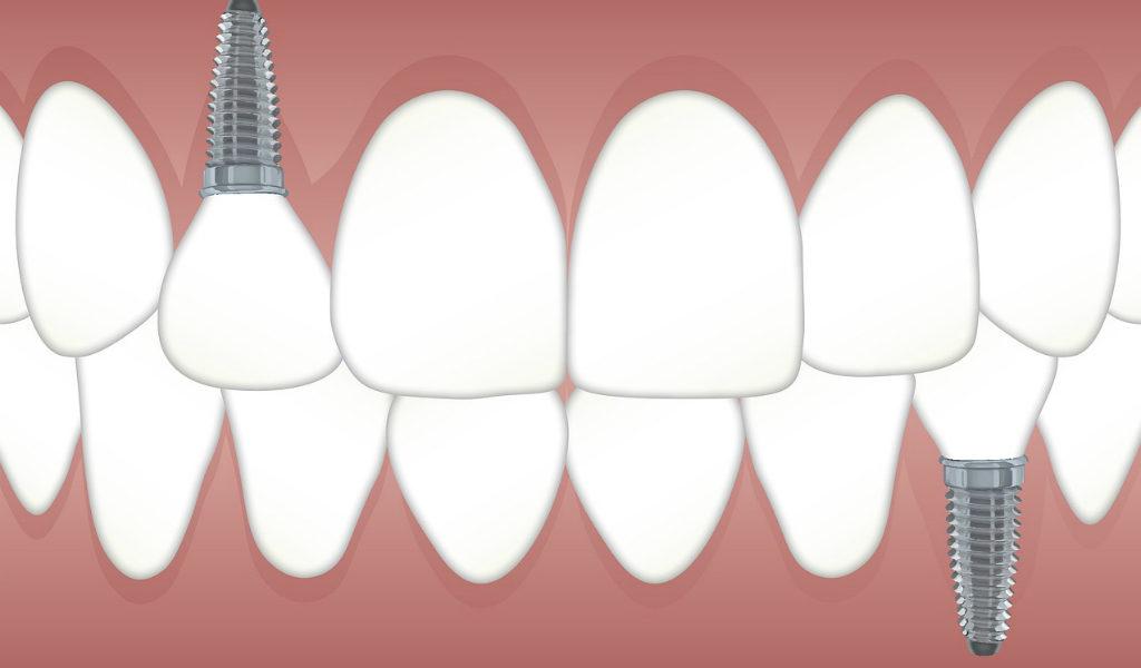 implantes dentales de calidad morales cervera