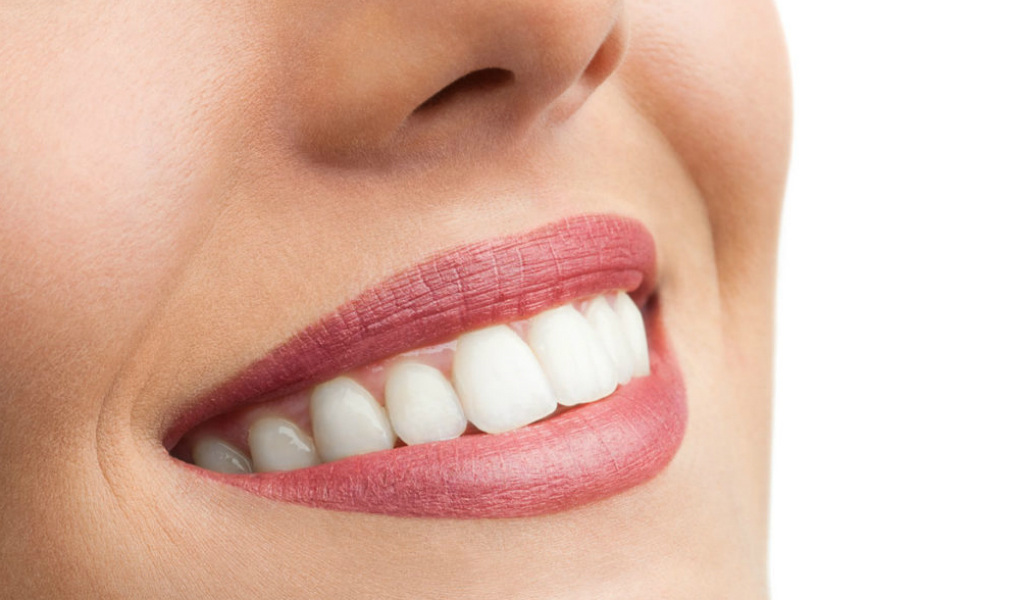 implantologia morales cervera sonrisa