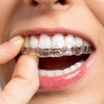 ¿Qué es la ortodoncia invisible Invisalign?