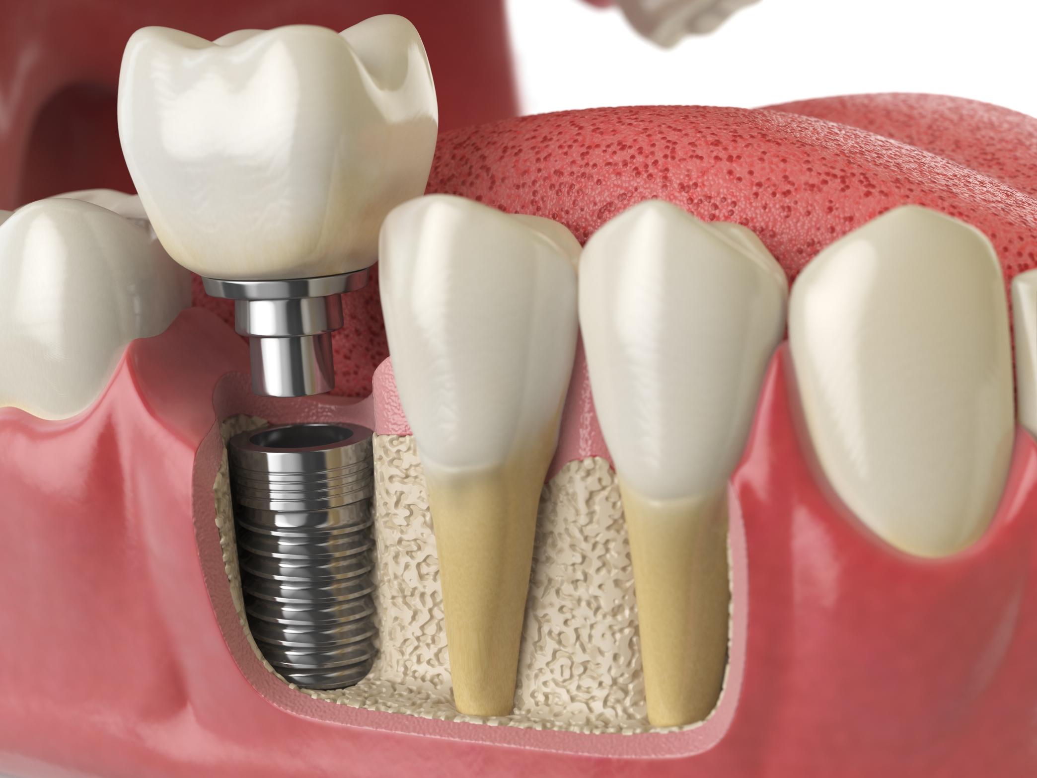Cuidados debes seguir implante dental