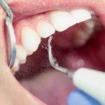 como afecta la placa bacteriana a tus dientes morales cervera